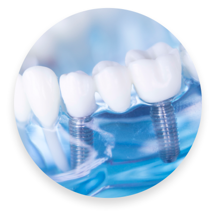 All-On-Four Dental Implants in Chantilly, VA
