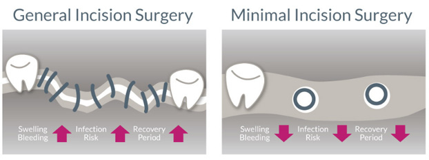 General-Incision vs. Minimal-Incision Surgery