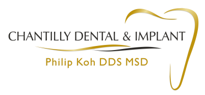 Dental Implants Chantilly Fairfax